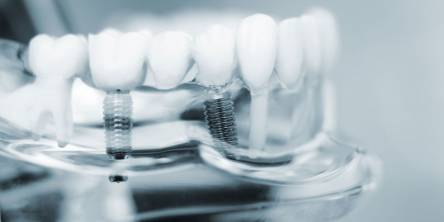 Choosing Between Immediate or Delayed Dental Implants