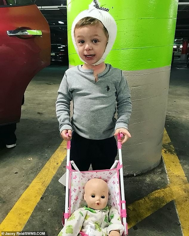 Davey was fitted with a second 'cranial distractor', which helps to reshape existing bone. This was later removed but had already expanded his head. He is pictured with his doll post surgery