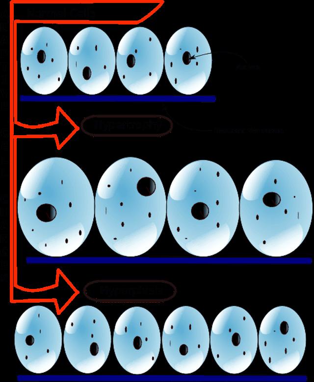 HyperplasiavsHypertrophy