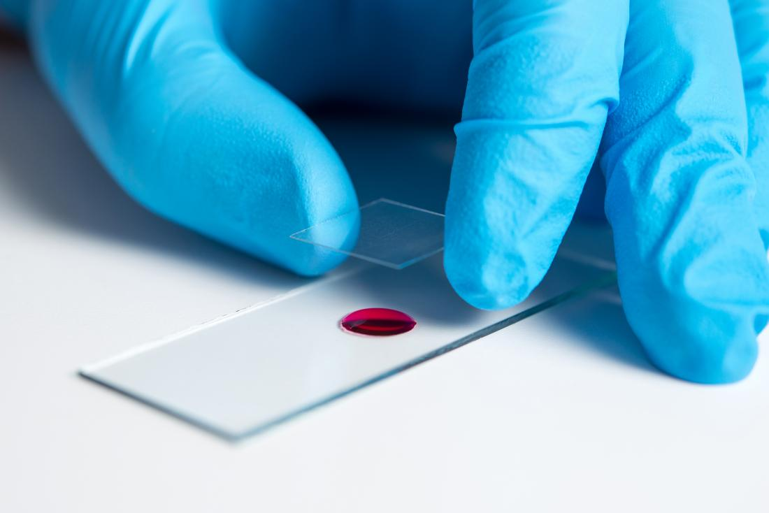 Blood sample on microscope slide for ALT blood test
