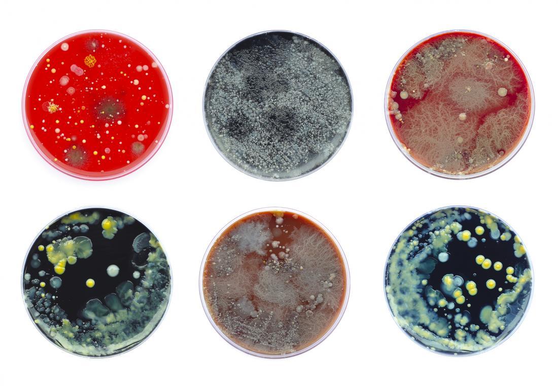 Petri dish bacteria