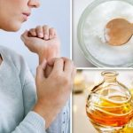 Eczema – three of the BEST natural moisturisers to get rid of dry and itchy skin at home