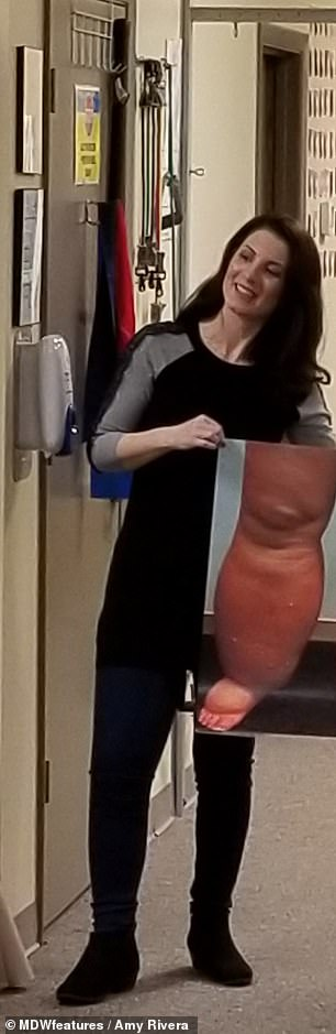 But she continued to hide her leg under long skirts until she embraced her look and, ultimately had an operation to bring it down to just one percent larger