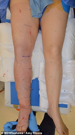 After the procedure, her right leg's swelling was drastically reduced. Now, it's just one percent larger than the left