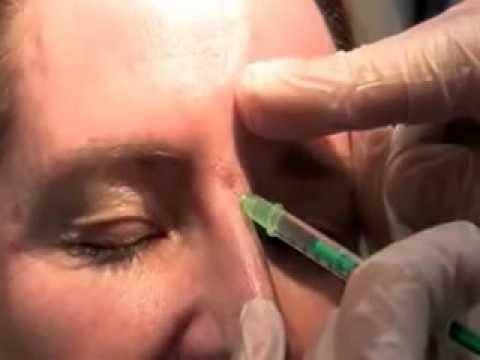 brow lift with botox