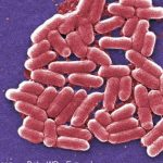 72 People Ill From E. Coli Outbreak, What Is The Cause?