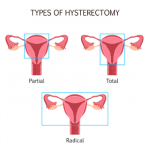Training Clients Post-Hysterectomy: What You Need to Know