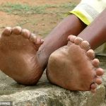 Woman, 63, born with 19 TOES and 12 fingers