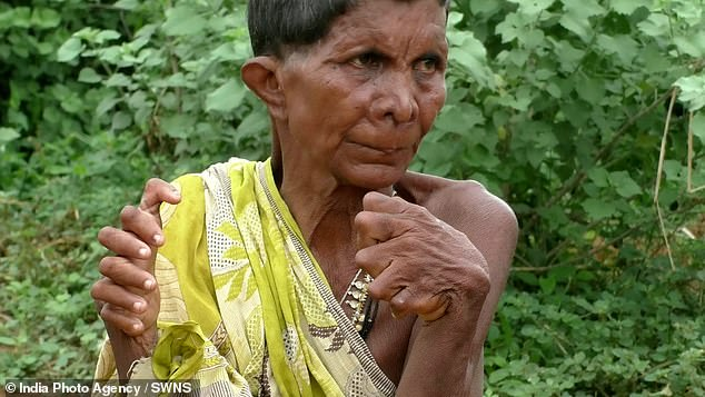 Ms Nayak said: 'I am forced to stay indoors as I am treated differently'