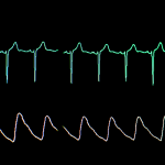 Geisinger studies show AI deep learning model helping cardiologists detect AFib