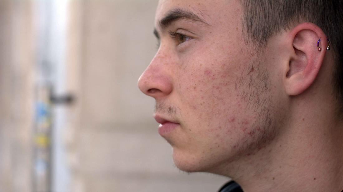 a side profile of a man who is wondering does masturbation cause his acne